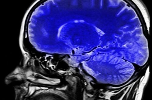 Risonanza magnetica contro il cancro?