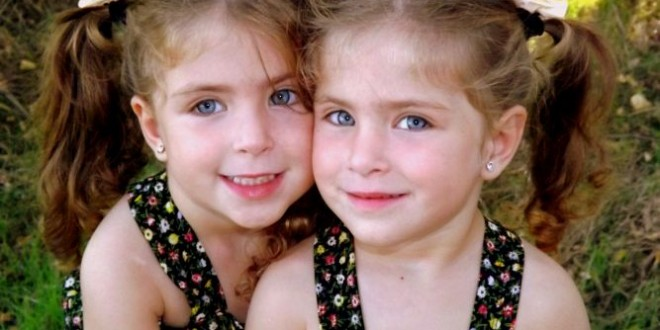 Artrite psoriasica e gemelli omozigoti