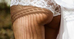 Cellulite addio? Arriva in Italia il metodo americano che elimina la buccia d'arancia