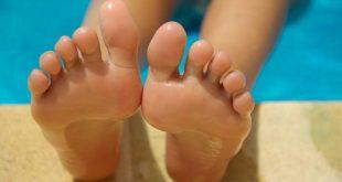 Verruche ai piedi: che cosa sono e come possono essere eliminate