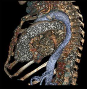 Tomografo computerizzato ultimo modello: la tac che fotografa tutto il corpo in un secondo
