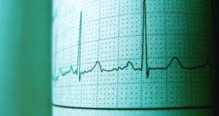 Aritmie cardiache: dallo stile di vita alla chirurgia mininvasiva