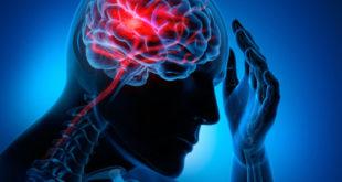 Ictus cerebrale: ecco i sintomi che fanno scattare l'allarme