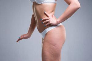 Cellulite: cause, trattamenti e rimedi per sconfiggerla