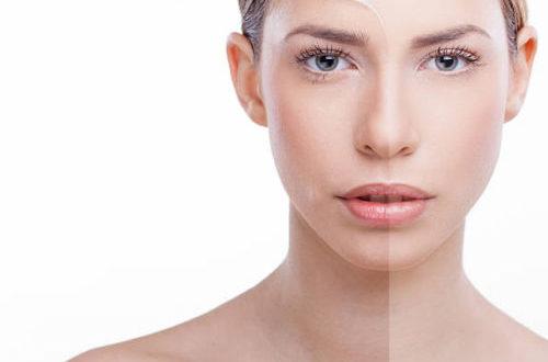Peeling viso: il trattamento per una pelle luminosa e levigata