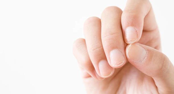 Unghie fragili, che si spezzano e si sfaldano: quali sono le cause?