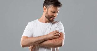 Buongiorno pelle: la nuova campagna sulla gestione della psoriasi