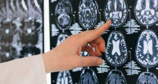 Farmacologia della risoluzione: un aiuto per invecchiare in salute