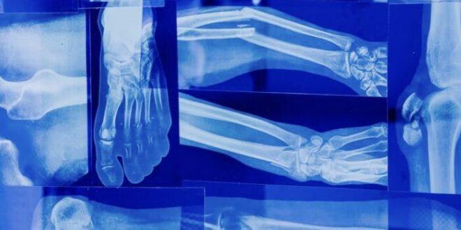 Fratture età pediatrica: stabili per numero di casi, peggiorano per gravità